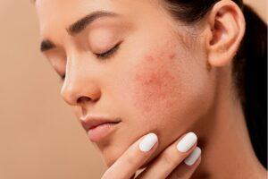 acne scars on face