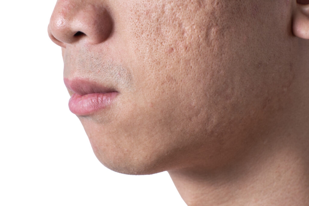 atrophic scars acne scars