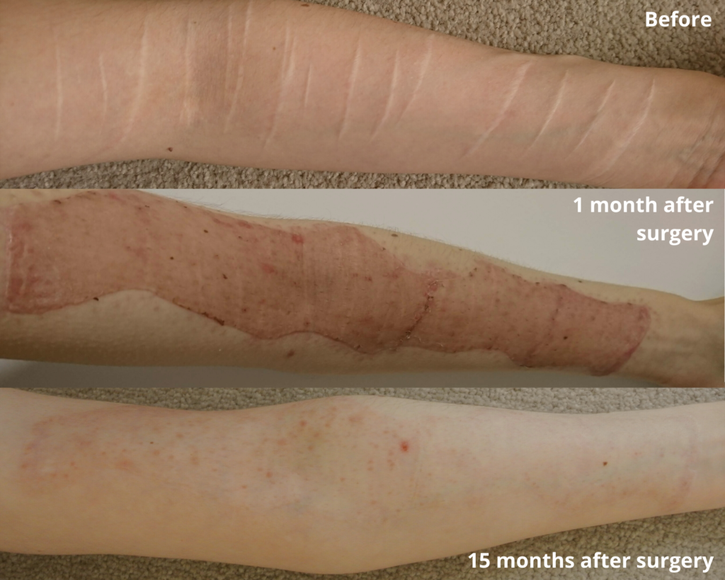 skin graft before and after